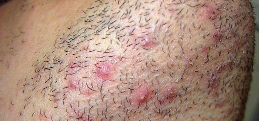 bouton apres rasage barbe